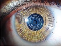 NATUROPATIA - I tuoi occhi parlano: attraverso l'iridologia è possibile capire il tuo stato di salute.