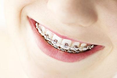 L'apparecchio ai denti ci rende più intelligenti: la scienza ha confermato la connessione tra i 32 denti, le 32 vertebre e il cervello