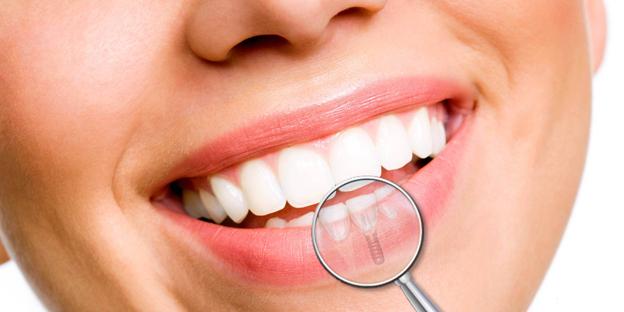 #DentiBelli - Quando e perchè ricorrere agli impianti dentali