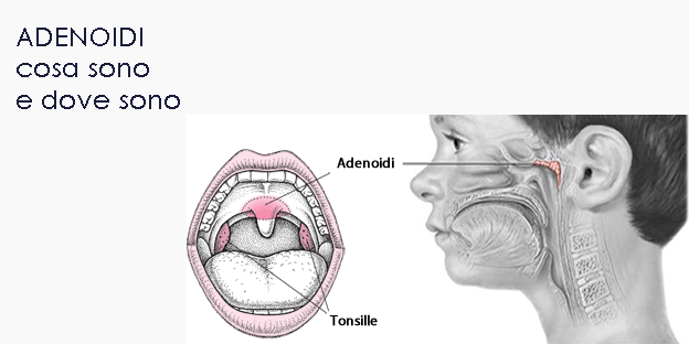 #OTORINO - Bambini e adenoidi: quando la barriera protettiva diventa essa stessa un focolaio di infezione